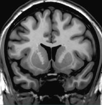 Brain (Coronal)