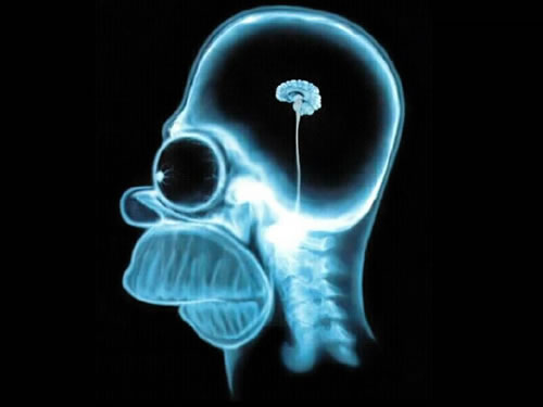 Homer Simpson MRI