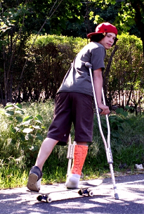 image of boy with broken leg & crutches on a skateboard