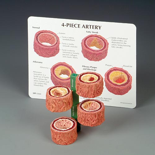 cross sections of an artery mounted on a vertical pole showing different types of artery conditions like atherosclerosis