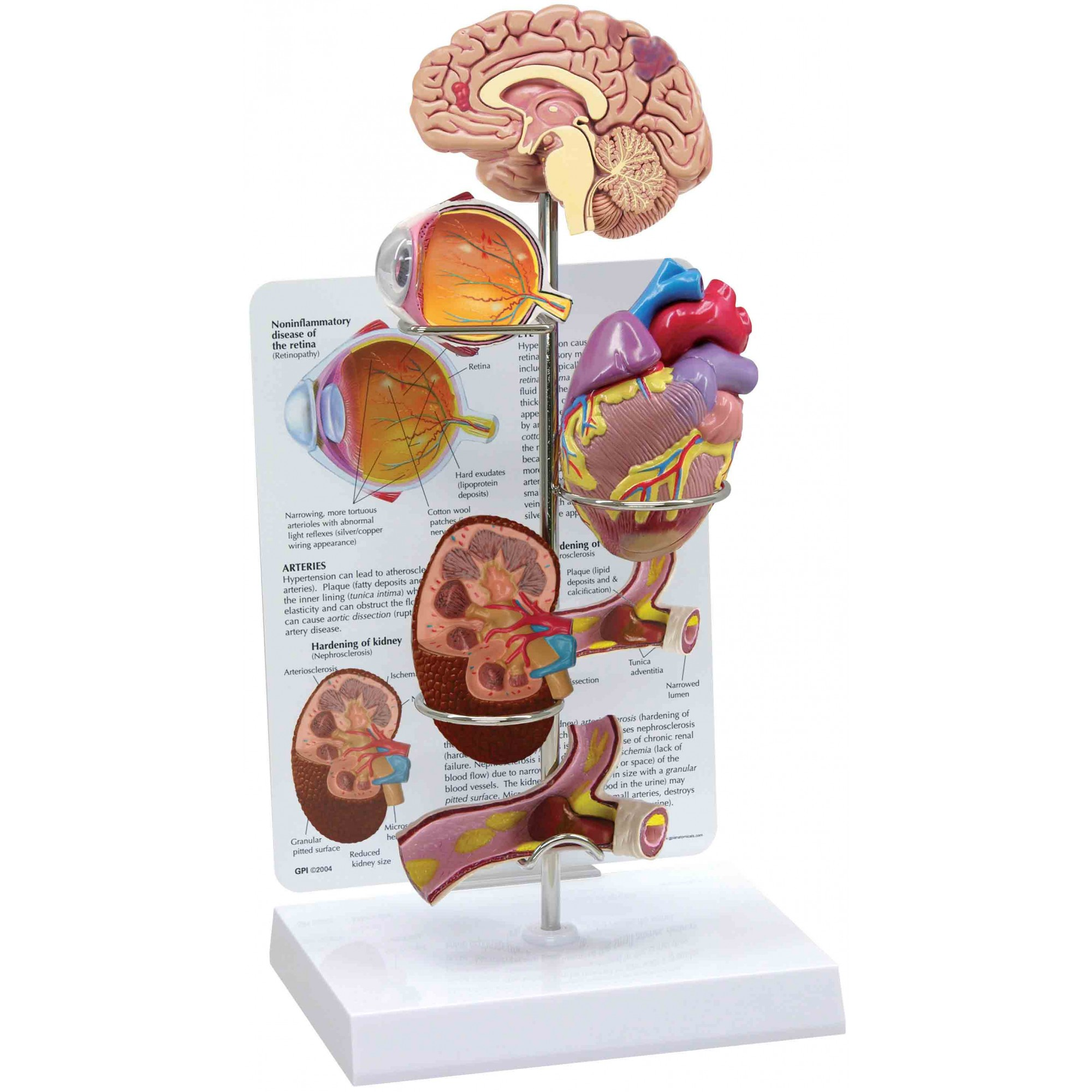 3-D model with body parts affected by hypertension mounted on a vertical pole with a description on a poster in the background