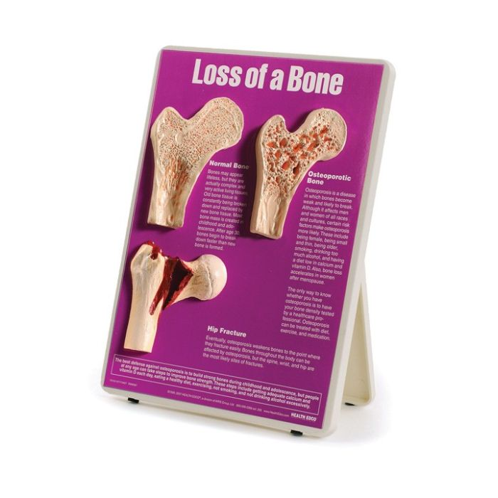 Loss of a bone, osteoporosis model