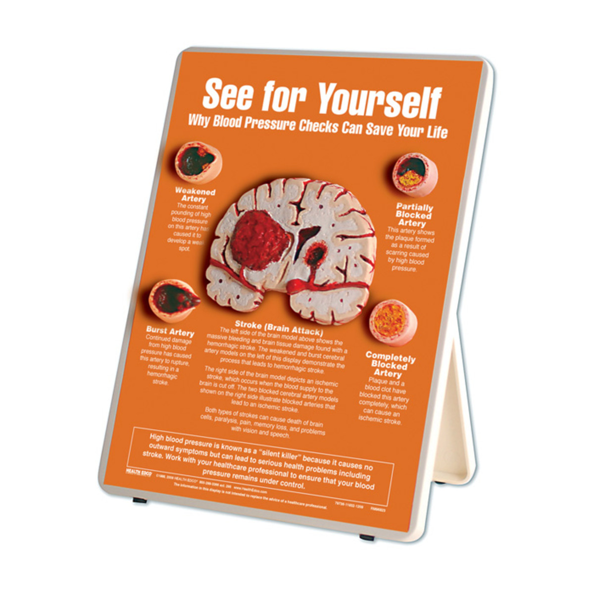 an orange board with 4 cross-sections of arteries and one of a brain that shows the effects of blood pressure like strokes