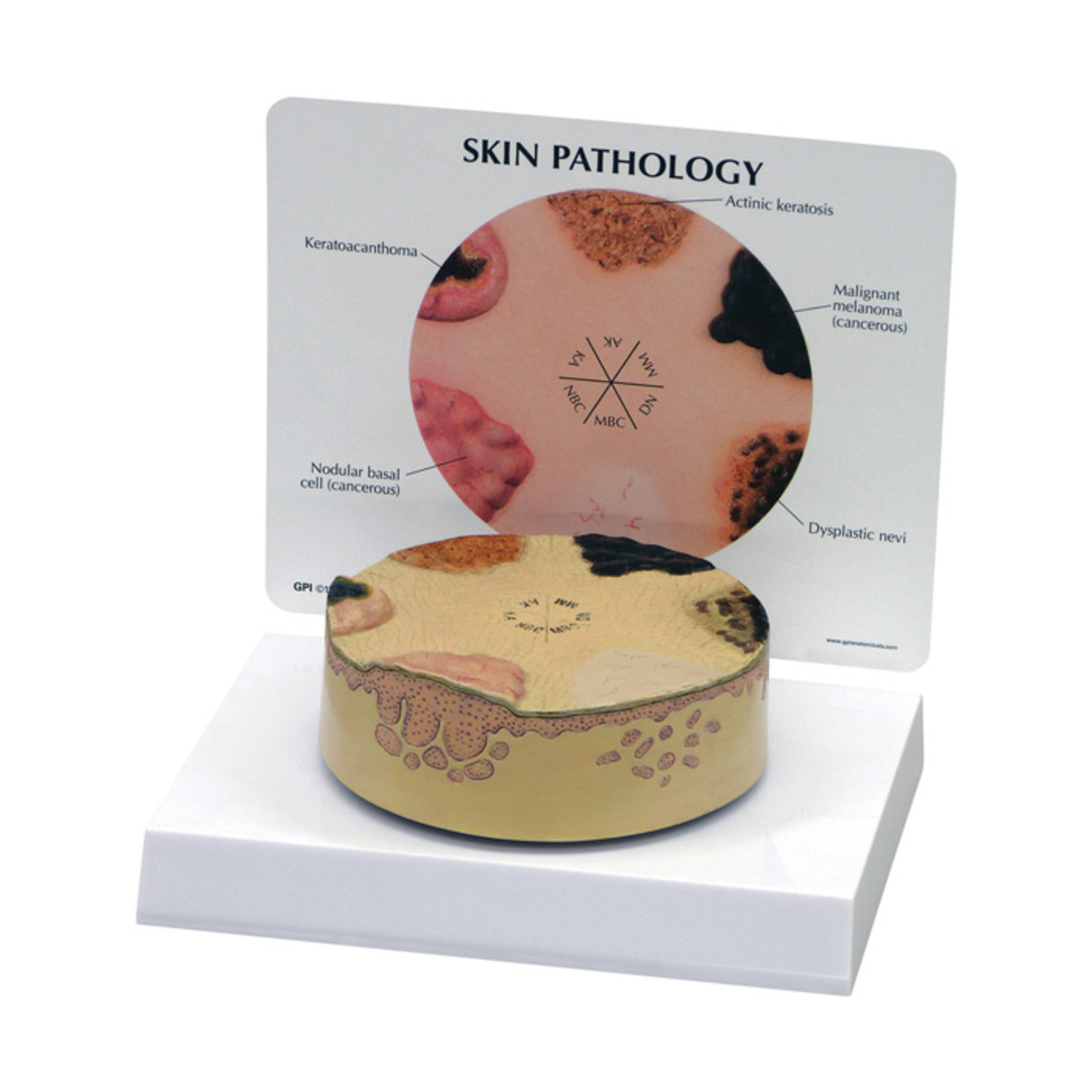3-D circle model with 5 different skin conditions and a descriptive poster