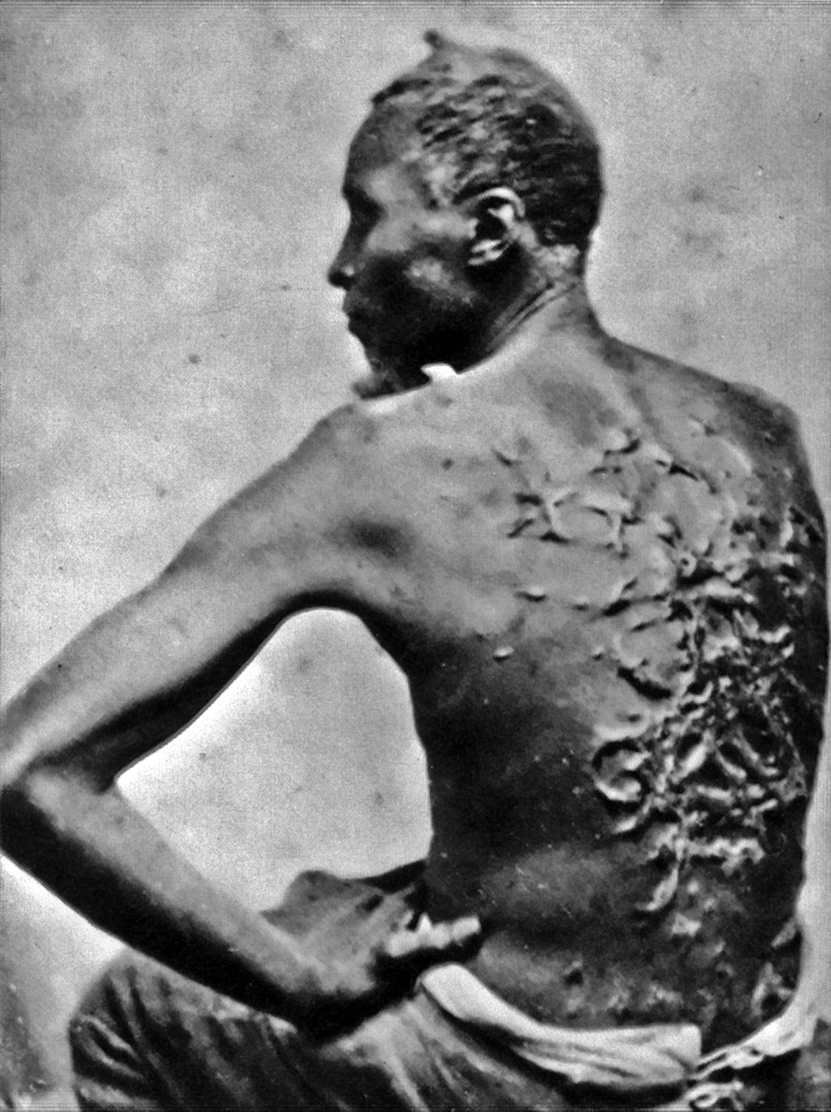 Gordon, a Louisiana slave who escaped to freedom in March 1863. He later joined the Union Army and served in the Sergeant in the 2nd Louisiana Regiment Infantry during the Siege of Port Hudson