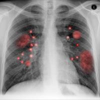 Multiple Pulmonary Masses