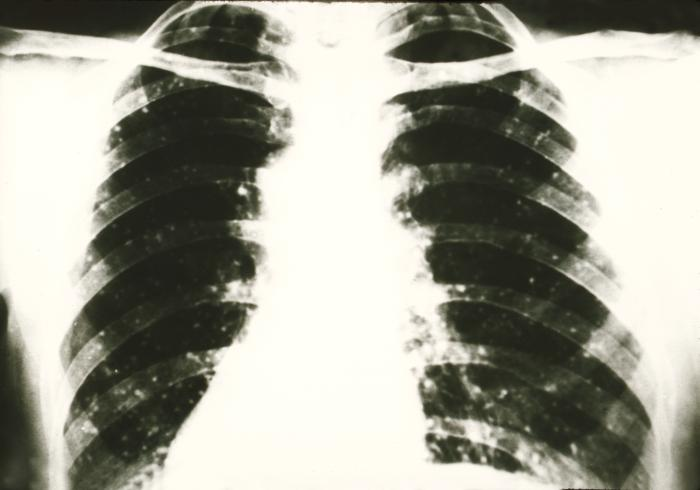 AP chest radiograph shows signs of histoplasmosis of the lungs due to the fungus Histoplasma capsulatum