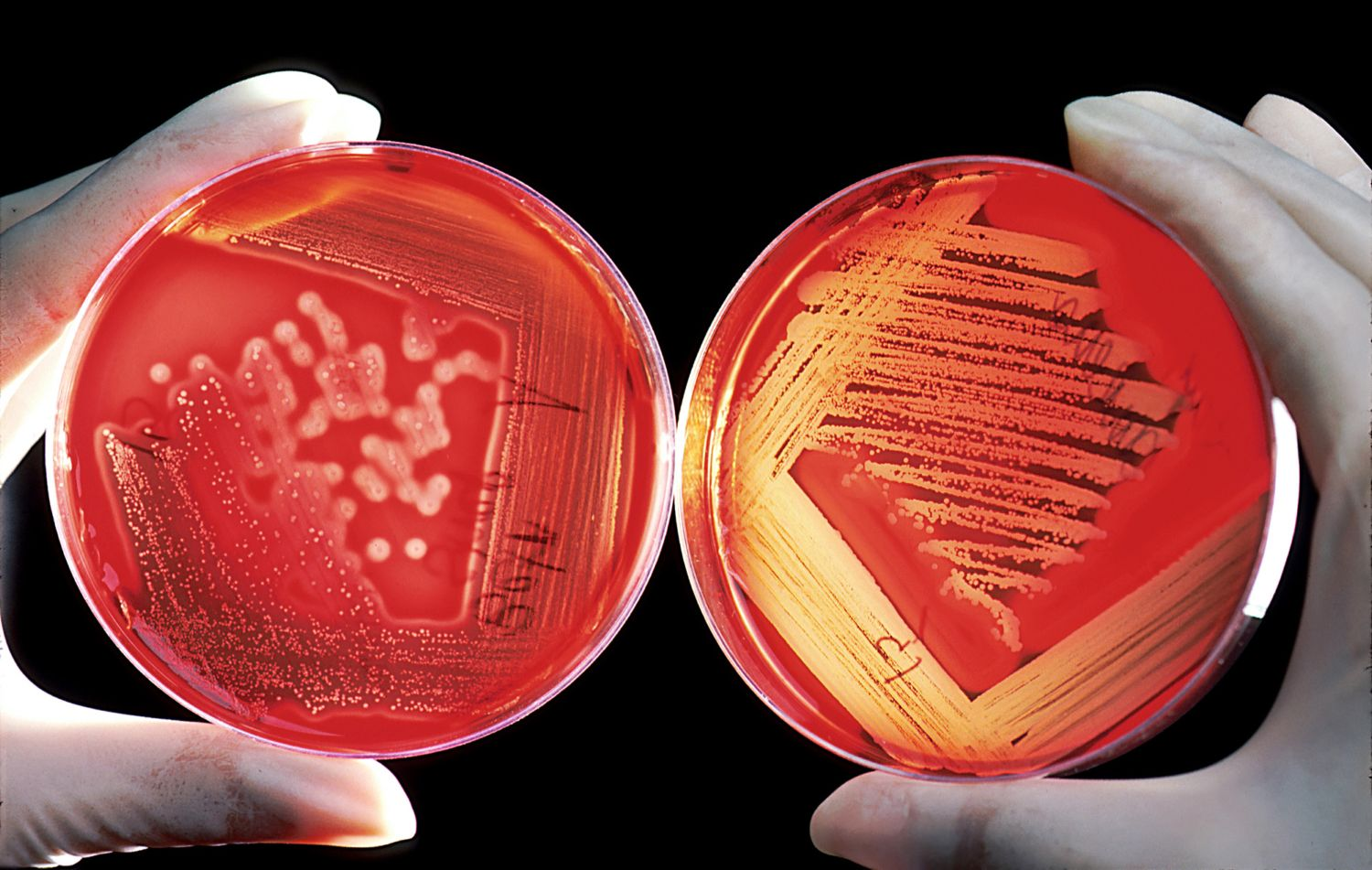 gloved hands holding two red petri dishes