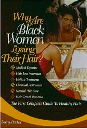 Why are Black Women Losing their hair?