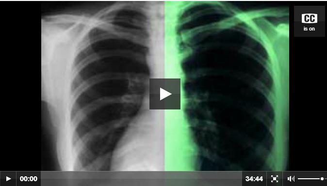 Radiology videos
