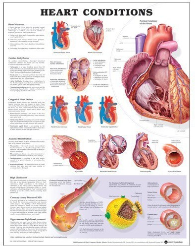 poster with anatomy of the heart and impact of heart conditions