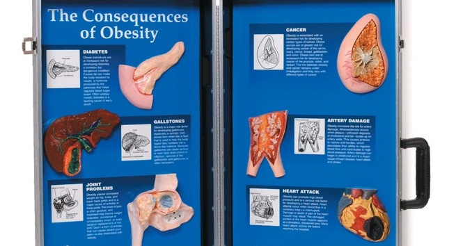 pictures of various organs as a result of chronic health conditions caused by obesity