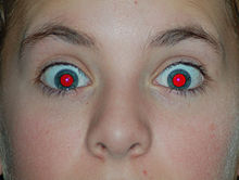 photo of girl with red eye