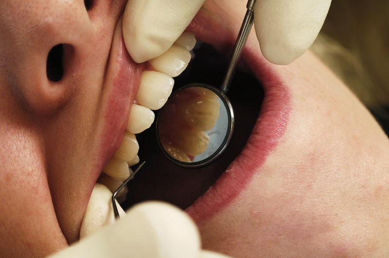 Soft Tissue Dental Examination