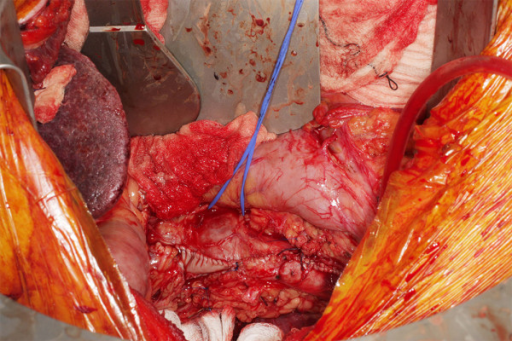 Closure of the IVC with a Pericardial Patch
